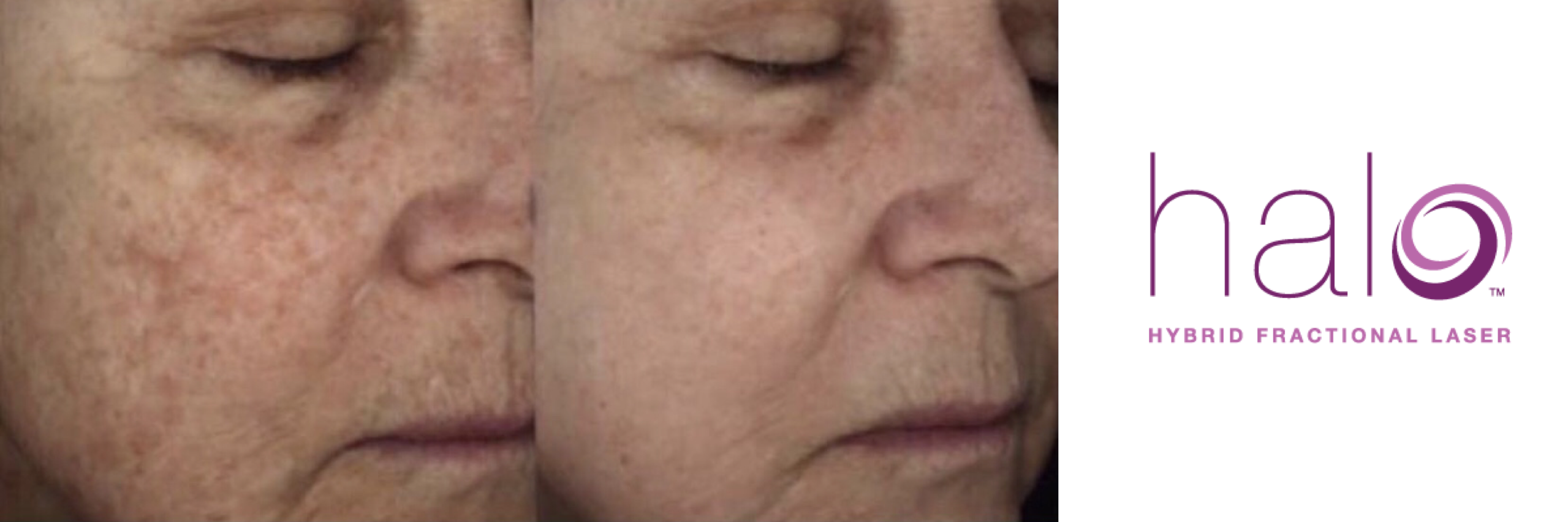 Glow with HALO By Sciton Laser Resurfacing
